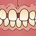 歯に隙間がある・すきっ歯